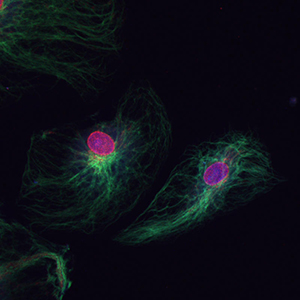 Dual Staining of Endothelial Cells for Vimentin in Green and Nuclear Pore Complex in Red