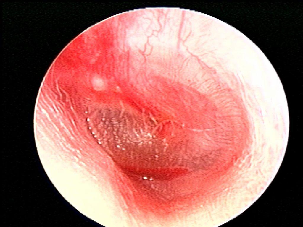 Hemorrhagic AOM