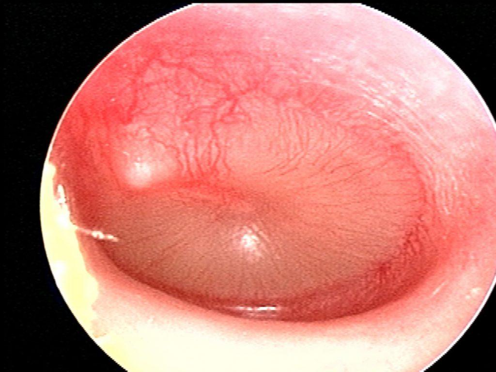 full or mild bulging erythema opaque fluid AOM