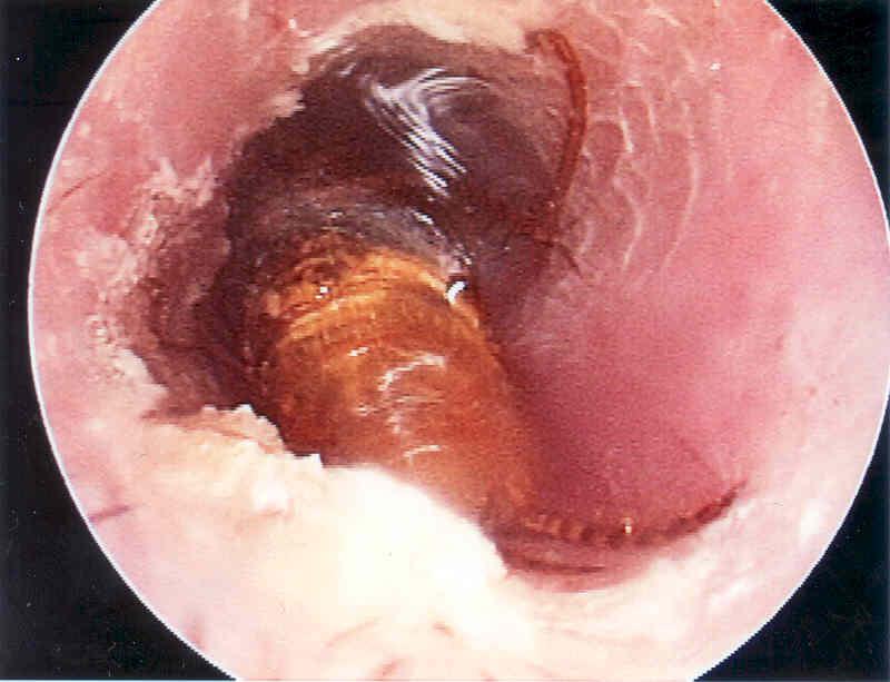 honey bee in ear canal