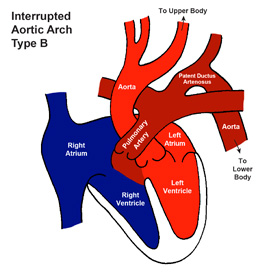 Interrupted Aortic Arch (IAA)