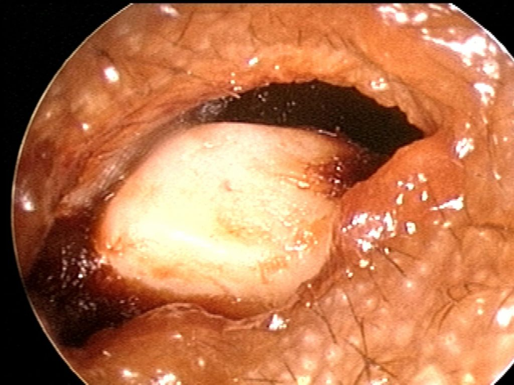 Pebble in ear canal