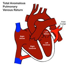 Total Anomalous Pulmonary Venous Return (TAPVR)