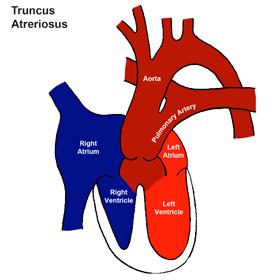 Truncus Arteriosus (Truncus)